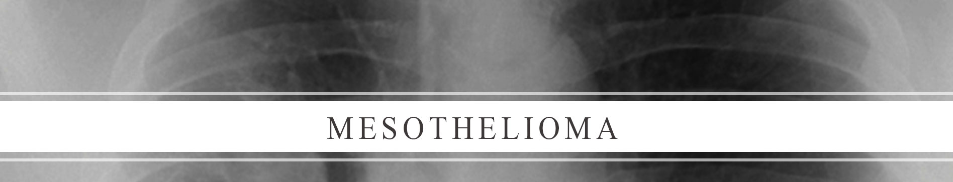 Mesothelioma and Asbestos Exposure Attorney in Texas